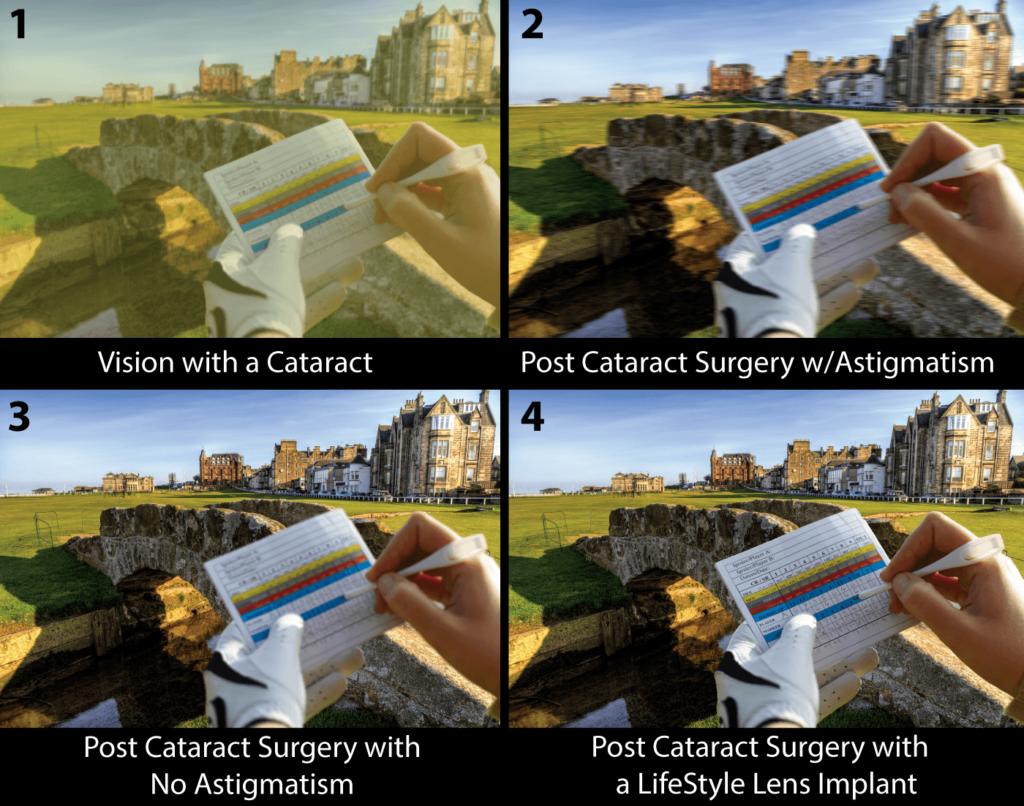 Cataract Vision Simulation