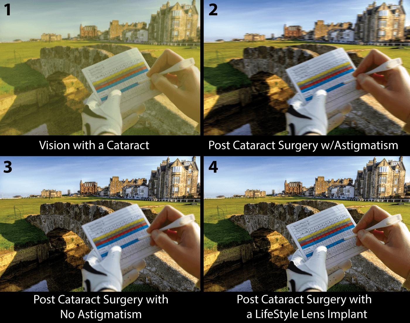 Cataract Lens Implants Santa Rosa Eye Surgery Laservue