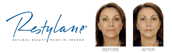 Restylane: Natural Beauty Made in Sweden