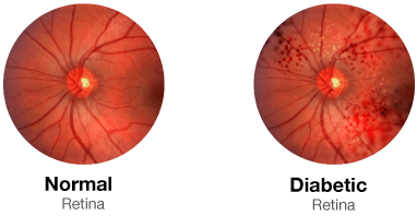 Normal Retina vs Diabetic Retina