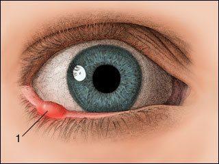Chalazion Treatment San Jose Vision Health Laservue