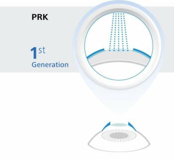 PRK Eye Surgery Graphic