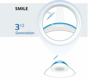 SMILE Eye Surgery Graphic